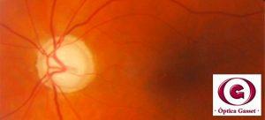 fondo de ojo con glaucoma