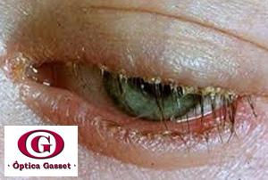 Blefaritis por estafilococos