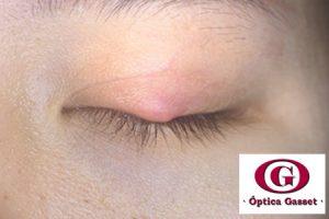 Orzuelo o chalazion son posibles complicaciónes de la blefaritis